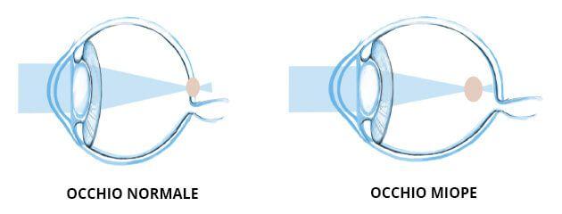 miopia oculista siracusa
